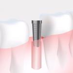 Comparativa de sillones dentales ¿Cuál se adapta mejor a tus necesidades?